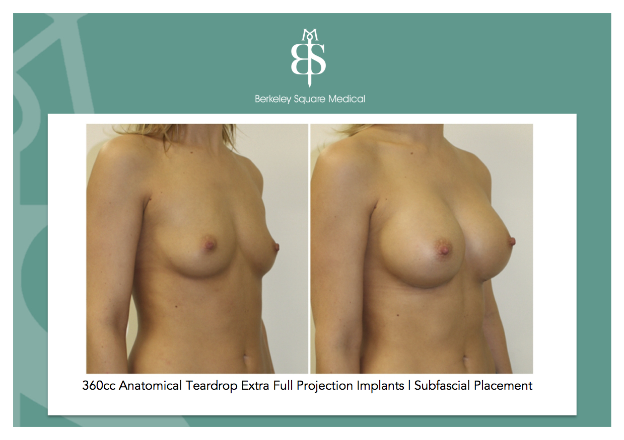 Breast Augmentation Growth, Natural Products, Costs