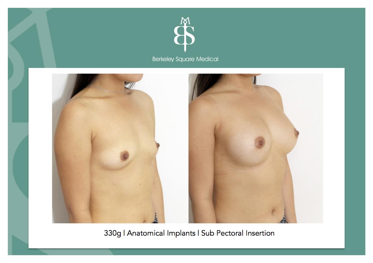 enlargement uk breast