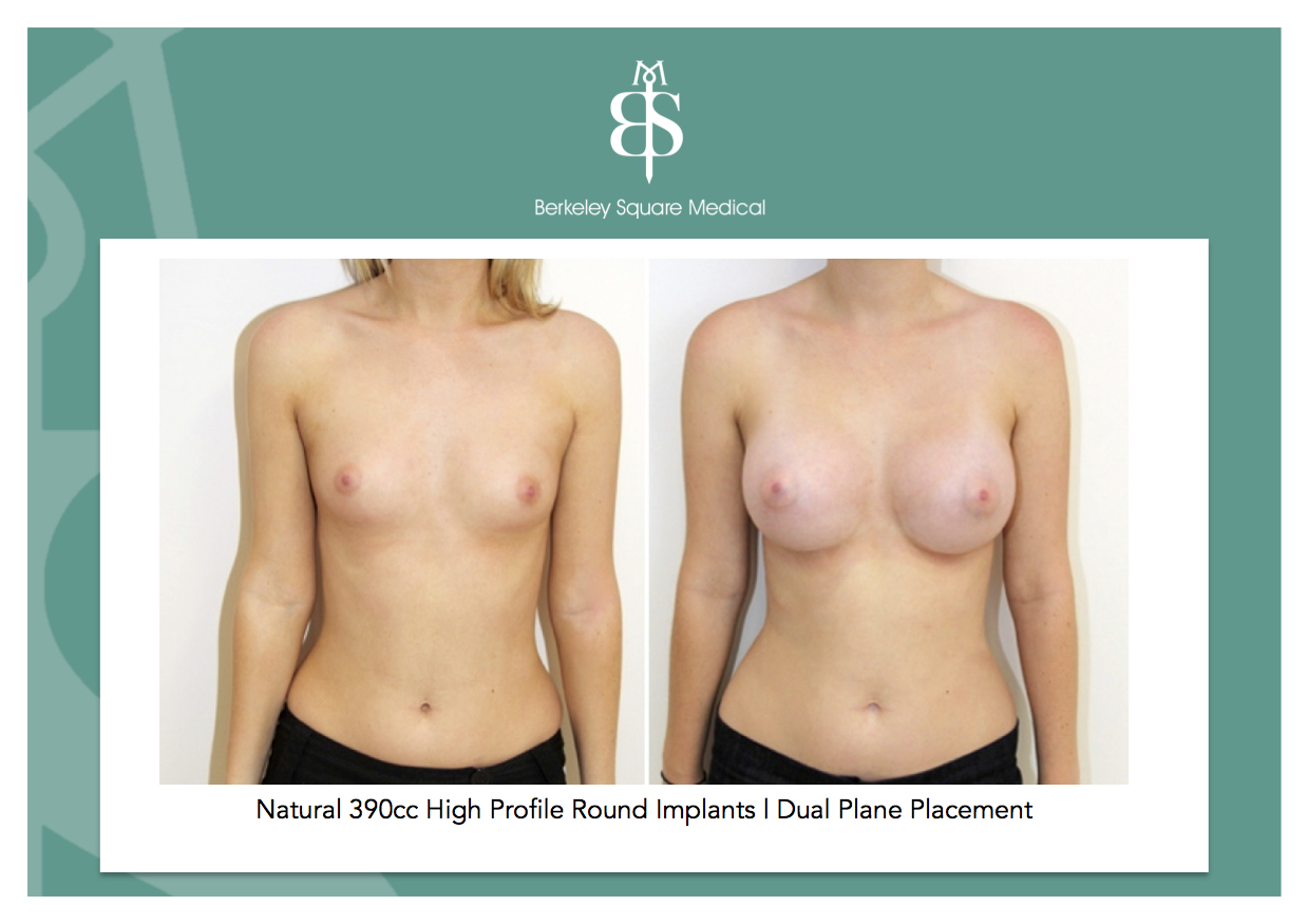 Breast enlargement surgery prices