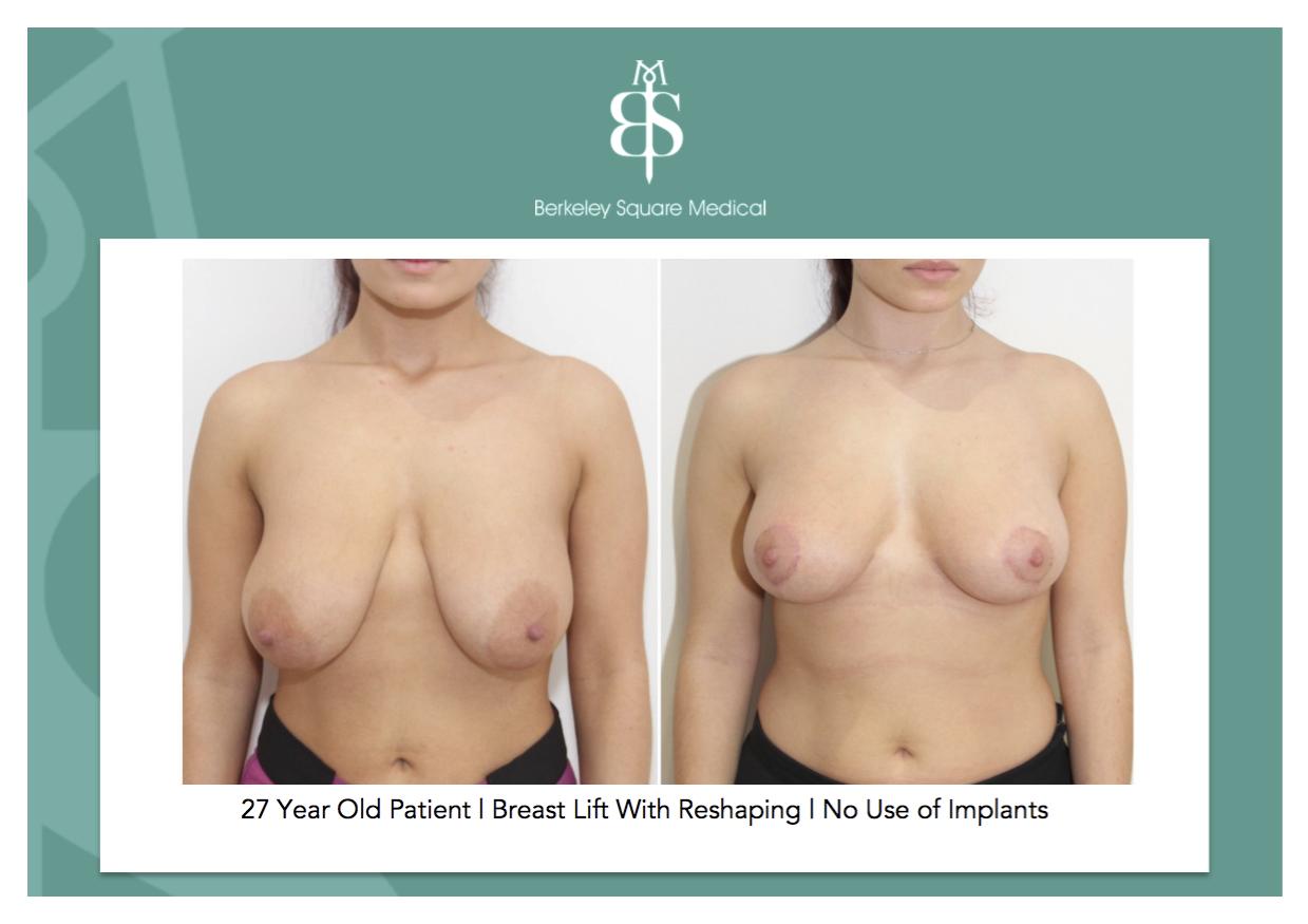 Breast lift procedure canada