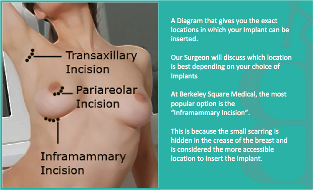 Breast Implant Incision Diagram