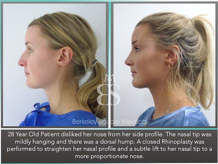 Rhinoplasty (Nose Job) in London, UK | Photos, Cost, FAQs