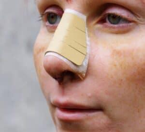reducing black eyes after nose job